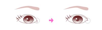 mihoro*の目は整形?二重はアイプチ?すっぴん画像で比較